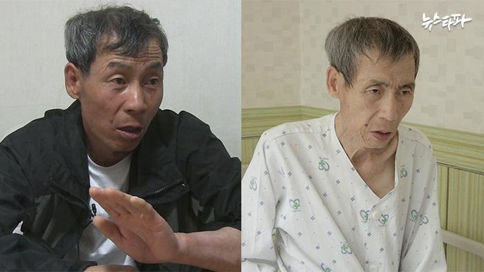 ▲ 2015년 당시 지영강 씨 모습(좌)과 암 투병 중인 현재 모습